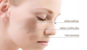 Nguyên nhân gây nám và hướng dẫn phòng ngừa nám da hiệu quả