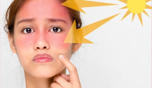 Sai lầm khi sử dụng kem chống nắng khiến da tổn hại nghiêm trọng
